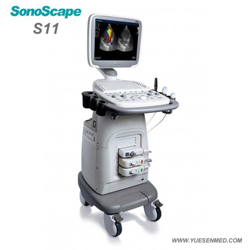 SonoScape S11 Price - SonoScape Trolley Color Doppler Ultrasound System S11