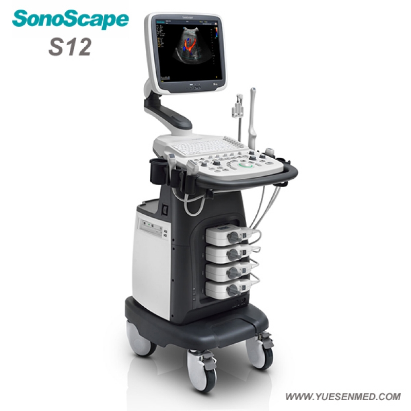 SonoScape S12 Price - Sonoscape Color Doppler Ultrasound S12 Price