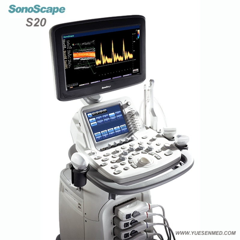Trolley Color Doppler Ultrasound Scanner SonoScape S20