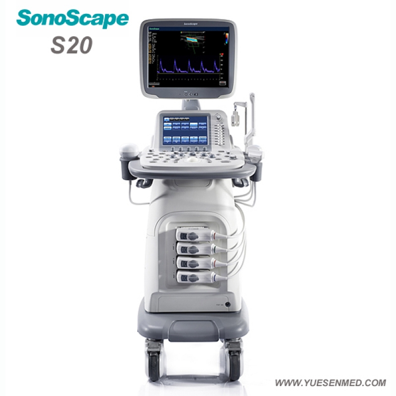 SonoScape S20 Price - SonoScape Trolley Color Dopper Ultrasound S20 For Sale
