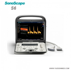 Portable Color Doppler Ultrasound Machine SonoScape S6