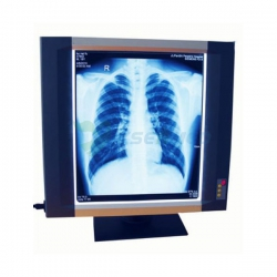Medical LED X-ray Film Viewer YSX1704
