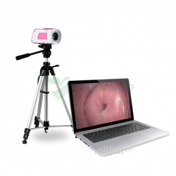 Portable Digital Colposcope For Gynecology YSSW3301