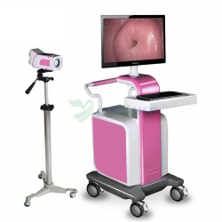 High Definition Medical Digital Colposcope YSSW3304