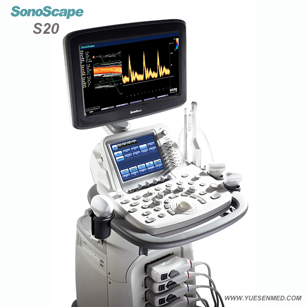 SonoScape S20 Price - SonoScape Trolley Color Dopper Ultrasound S20