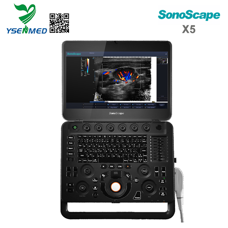 Sonoscape X5 Price - SonoScape X5 Portable 4D Color Doppler Ultrasound Machine Cost