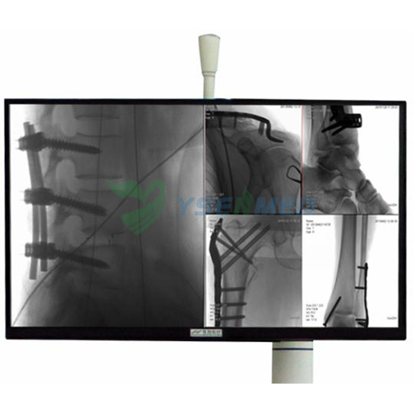Flat Panel Detector Digital Orthopedic C-arm X-ray System Touch Screen Monitor